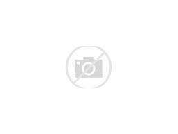 英国AlphaSolway呼吸器