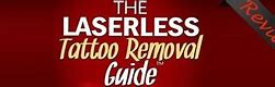 Laserless Tattoo Removal Review-Laserless Tattoo Removal Download
