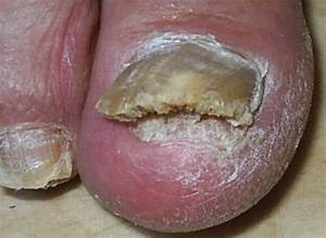 Грибок ногтя у ребенка лечение