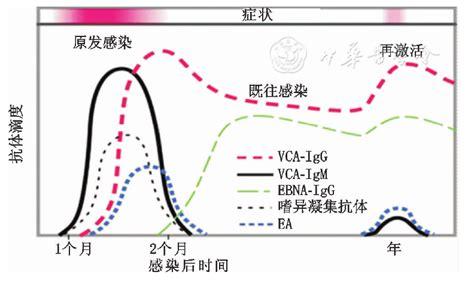 EB病毒感染相关疾病的实验室诊断 - 中华实用儿科临床杂志