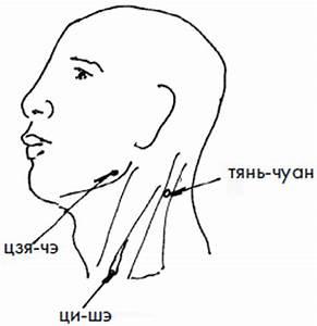 Какой шум в ушах при гипертонии