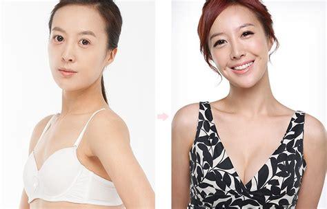 上海隆胸整形手术_隆胸手术_隆胸手术视频_隆胸手术失败图片 ...
